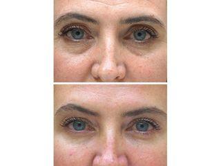 Eliminación de ojeras - Salud y Belleza Siglo XXI