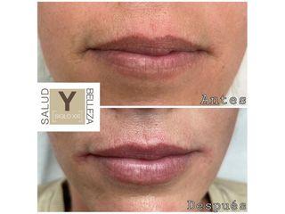 Aumento de labios - Salud y Belleza Siglo XXI