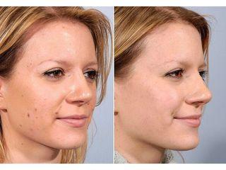 Verrugas - Salud y Belleza Siglo XXI
