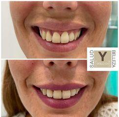 Sonrisa gingival - Salud y Belleza Siglo XXI