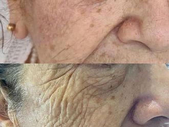 Rejuvenecimiento facial - 799945
