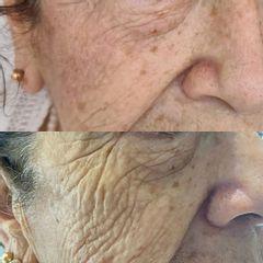 Rejuvenecimiento facial con PlexR - Salud y Belleza Siglo XXI