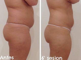 Tratamiento reductor de abdomen