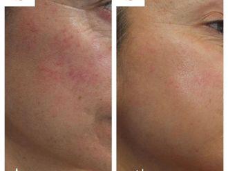 Dermatología-785851