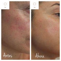 Tratamiento antimanchas - Clínica Graziella Moraes