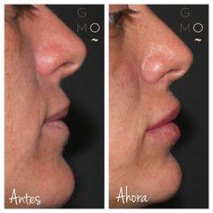 Aumento de labios - Clínica Graziella Moraes
