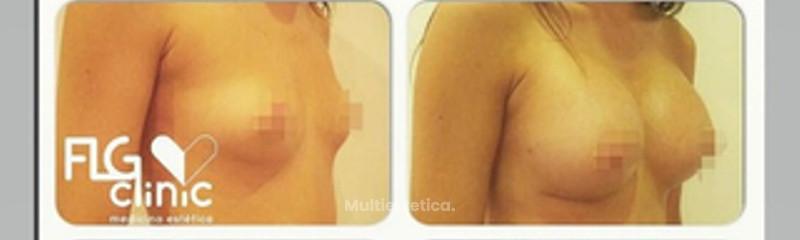 Antes y después aumento de senos