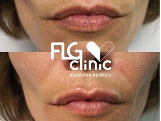 Rellenos faciales-625995