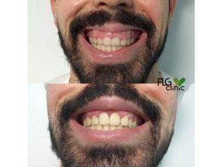 Antes y después Bótox sonrisa gengival