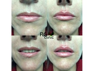 Aumento labios - 640849