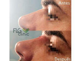 Medicina estética-640850