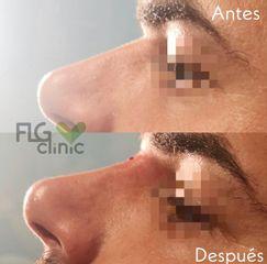 Antes y después Rinomodelación - FLG Clinic