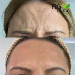 Antes y después Baby Botox