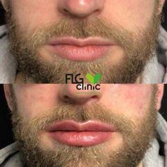 Aumento de labios - FLG Clinic