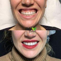 Sonrisa gingival - FLG Clinic