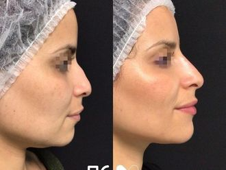 Rellenos faciales - 792843