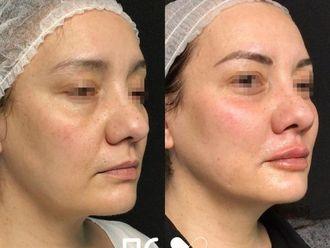 Rellenos faciales - 792848