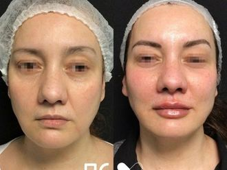 Rellenos faciales - 792850