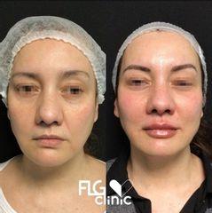 Rellenos faciales - FLG Clinic