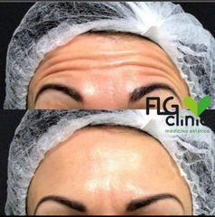 Bótox - FLG Clinic