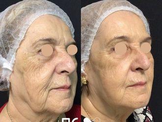 Rejuvenecimiento facial - 792852