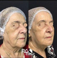 Rejuvenecimiento facial - FLG Clinic