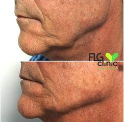 Perfilado mandibular - FLG Clinic