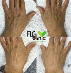 Tratamiento láser LPL - FLG Clinic