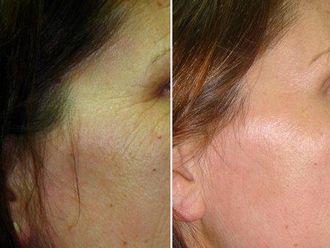 Rejuvenecimiento facial-417370