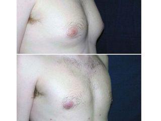 Antes y después Ginecomastia