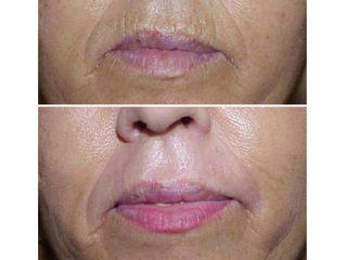 Antes y después Láser de labios