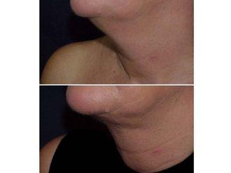 Liposucción - 490361