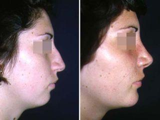 Antes y después Nariz y mentón (rinoplastia y mentoplastia)