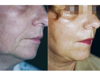 Rellenos faciales-490368