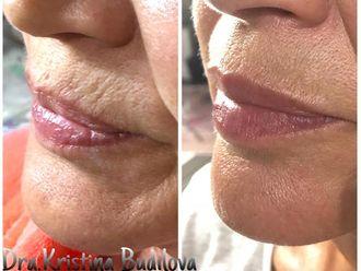 Aumento labios - 631664