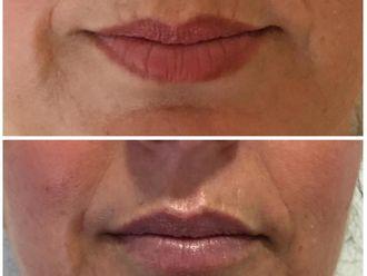 Aumento labios - 631665
