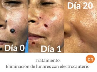 Lunares - 609477