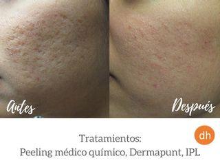Antes y después Tratamientos para acné