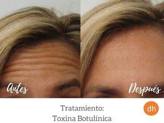 Antes y después Elimina arrugas