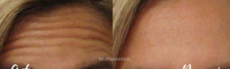 Elimina arrugas