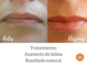 Aumento labios - 609480
