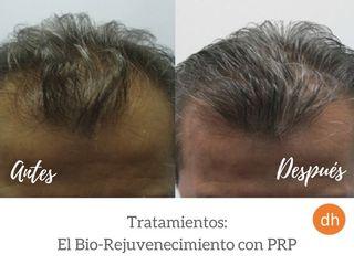 Antes y después Pérdida de cabello