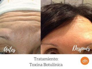 Antes y después Elimina arrugas en la frente