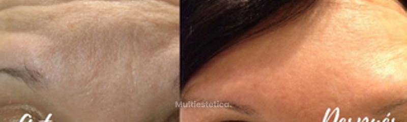 Elimina arrugas en la frente
