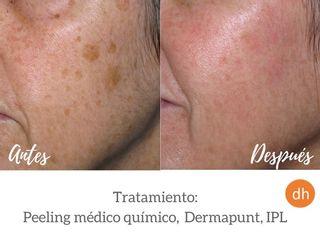 Antes y después Tratamiento para manchas