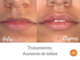 Aumento labios - 609484