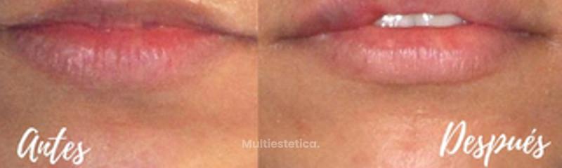 Aumento de labios ¡Resultado natural!