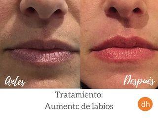 Antes y después Aumento de labios ¡Resultado natural!