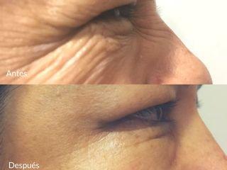 antes-después Botox