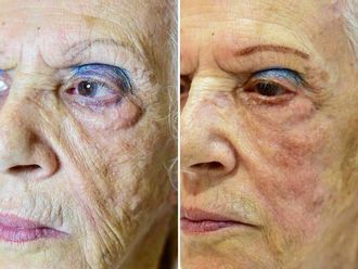 Rejuvenecimiento facial-626339